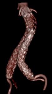 Aneurismi aorta addominale