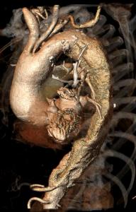 aneurismi toracico addominali