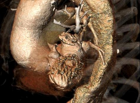 Trattamenti aneurismi aorta toracica
