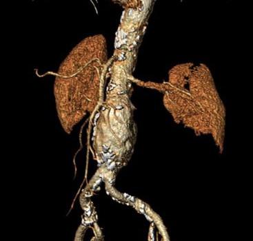 Trattamenti aneurismi aorta addominale