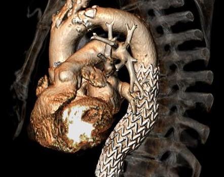 Aneurismi aorta toracica